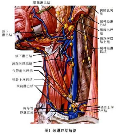 颈部淋巴结核长在动脉血管旁怎么办