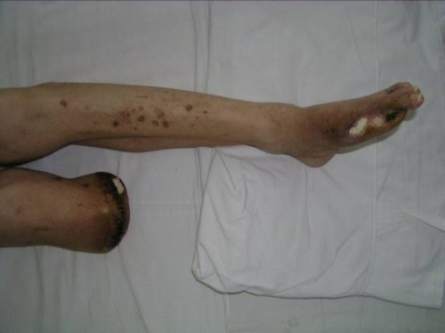 蜂窝组织炎的治疗_皮下急性蜂窝织炎