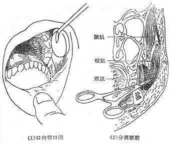 性 腺 化膿 炎 下 耳 耳の下の耳下腺が腫れている