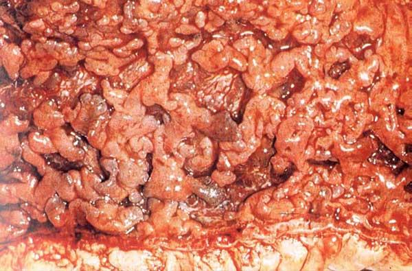 大便带脓血就是溃疡性结肠炎吗